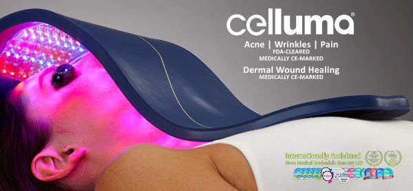 celluma treatment