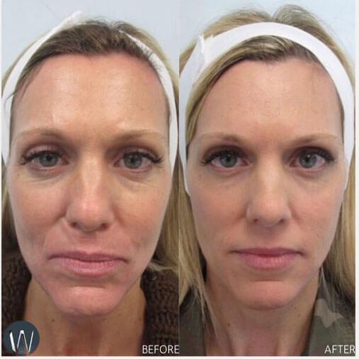 Dr Tina West, Aspen dermatologist