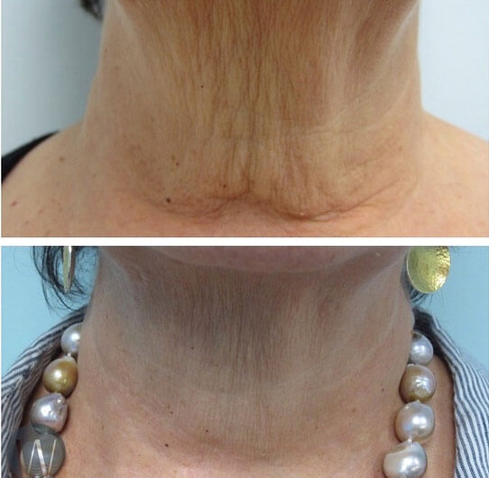 INFINI Neck Tightening Before and After